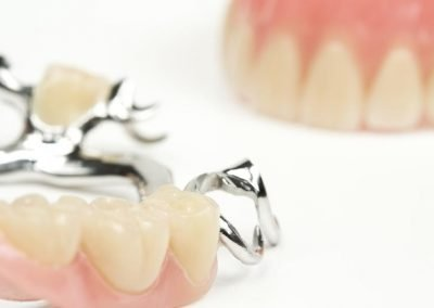 dental-care coquitlam-10