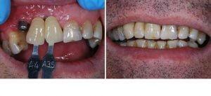 dentist-coquitlam