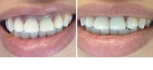 dentist-coquitlam-