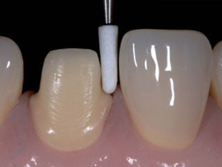 Why patients should choose all ceramic restorations instead of PFM (Porcelain fused to metal)