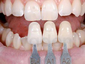 dental-care-coquitlam-ips-e-shade-determination-sm