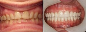 dentist-coquitlam-before-after-group2--pic4