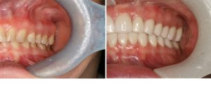 dentist-coquitlam-before-after-pic-group3-pict3